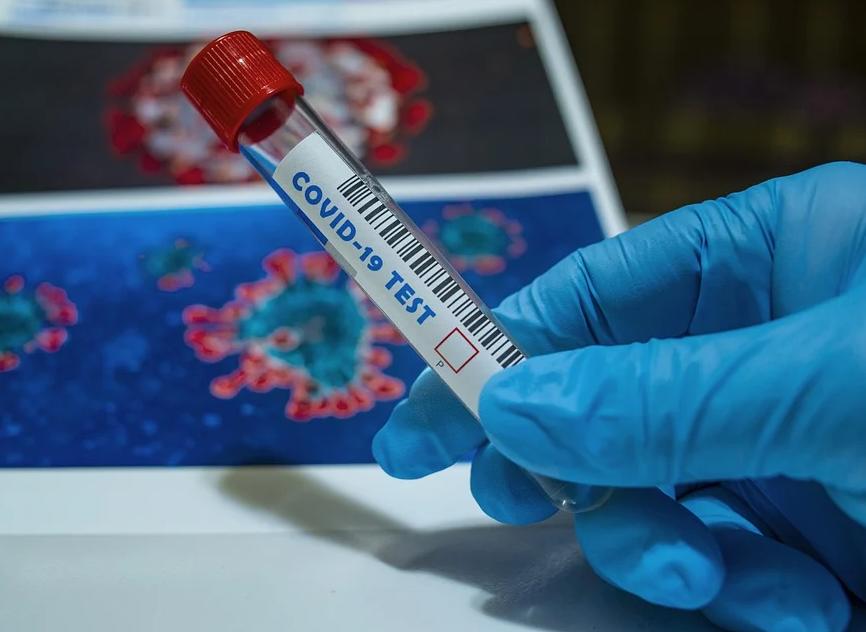 Плюс 303 заболевших за сутки: данные по ковиду в Ульяновской области на 21 сентября