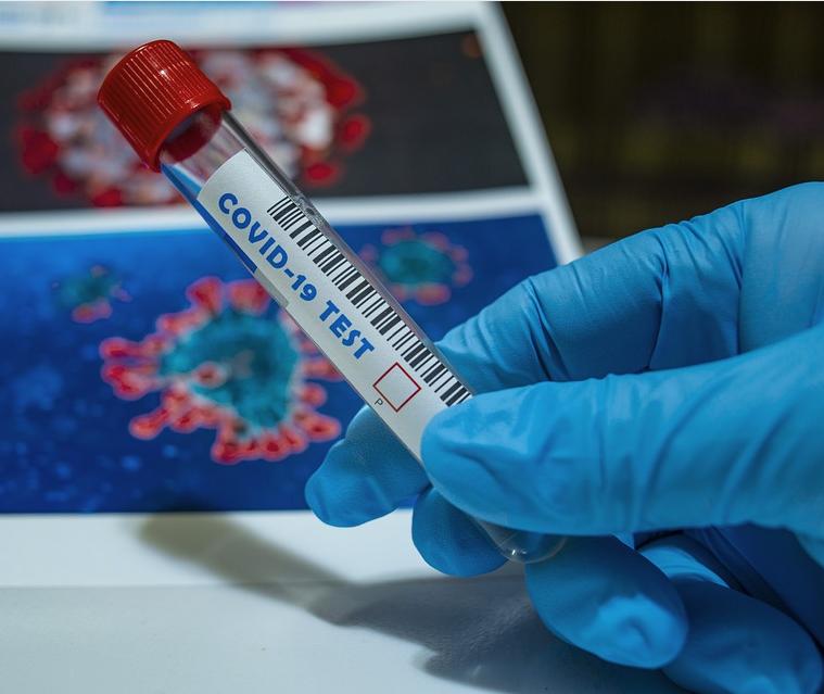 Плюс 125 заболевших за сутки: новые данные по коронавирусу в Ульяновской области